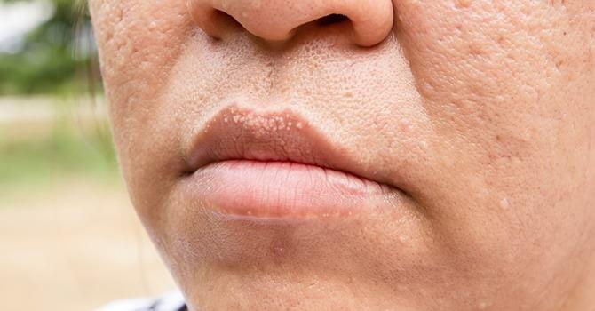 acne littekens verminderen