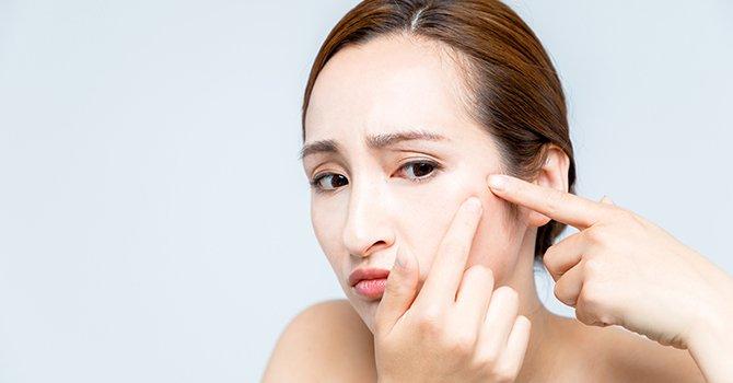Stiekeme veroorakers van acne