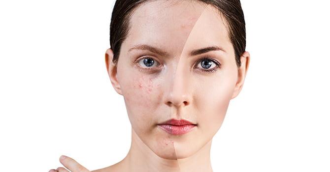 acne tegengaan