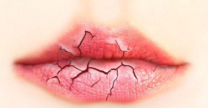 Arganolie, De Oplossing Voor Gebarsten Lippen