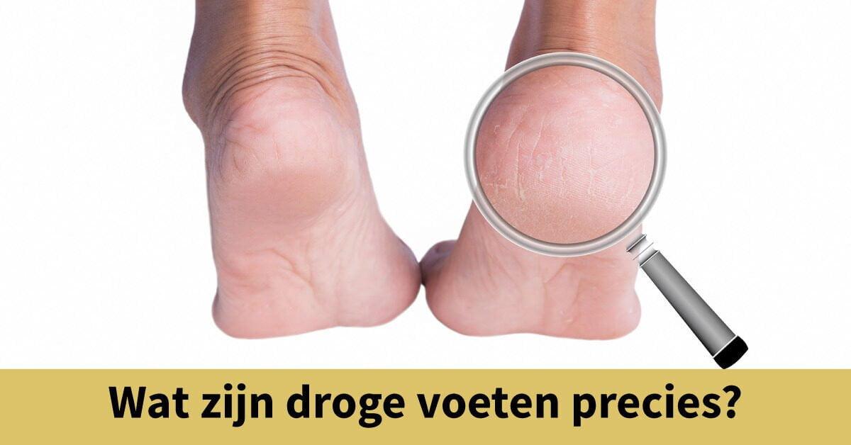 droge hiel voeten vergrootglas