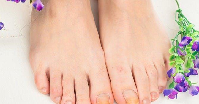 Factoren Die je Een Hoog Risico Geven op een Nagelschimmelinfectie
