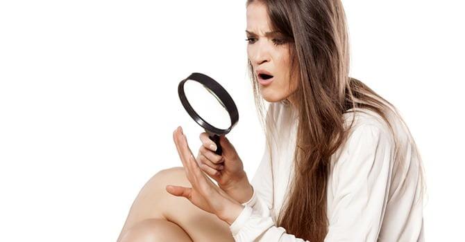Heb je vaak last van nagelproblemen? Controleer je dieet!