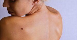 Hoe Je Je Huid Op Huidkanker Kunt Controleren