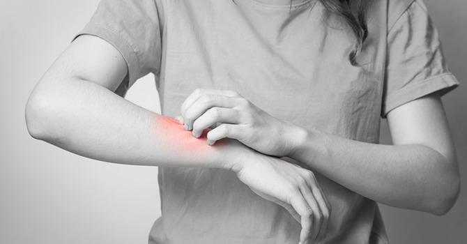 Huidverzorgingstips Voor een Droge en Jeukende Huid