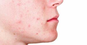Is Arganolie Effectief in het Behandelen van Acne Littekens?