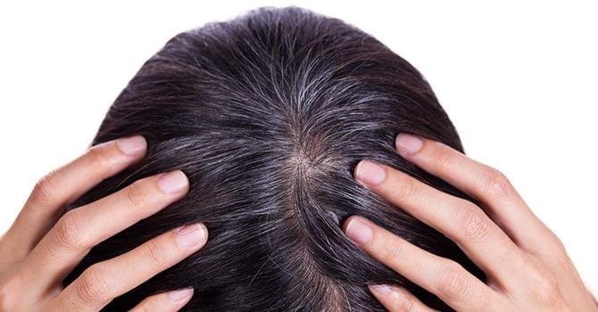 Je Hebt een Haarverzorgingsplan Nodig Als je Ouder Wordt