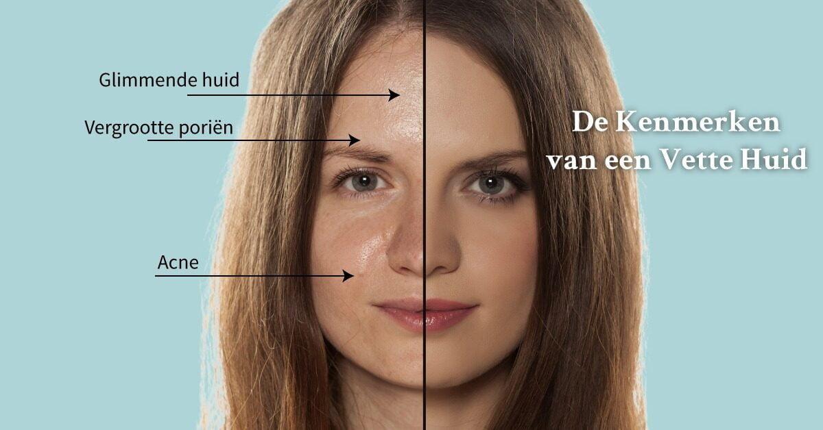 Kenmerken vette huid gezicht half vrouw
