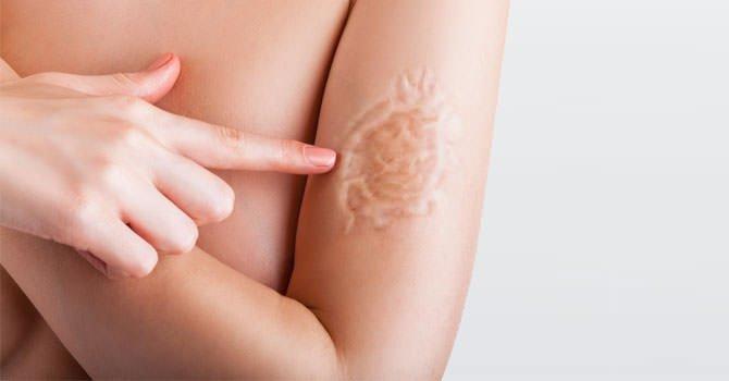 Litteken Op Het Arm Na Het Verwijderen Van Een Tatoo