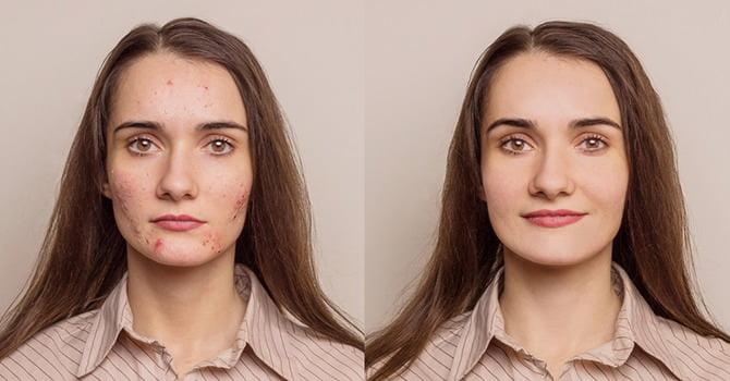 Littekens van acne verwijderen