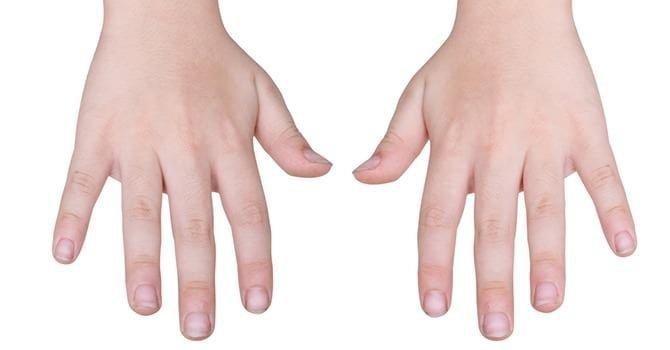 Ontdek de Tekenen van de Nagels die Wijzen op een Voedingstekort