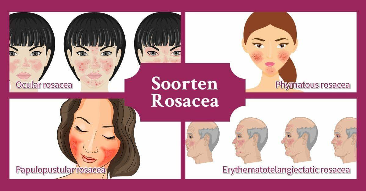 Soorten Rosacea roodheid diverse mensen