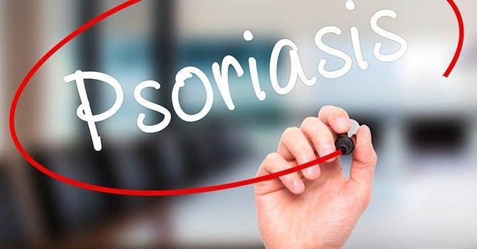 Tekenen en Symptomen van Psoriasis