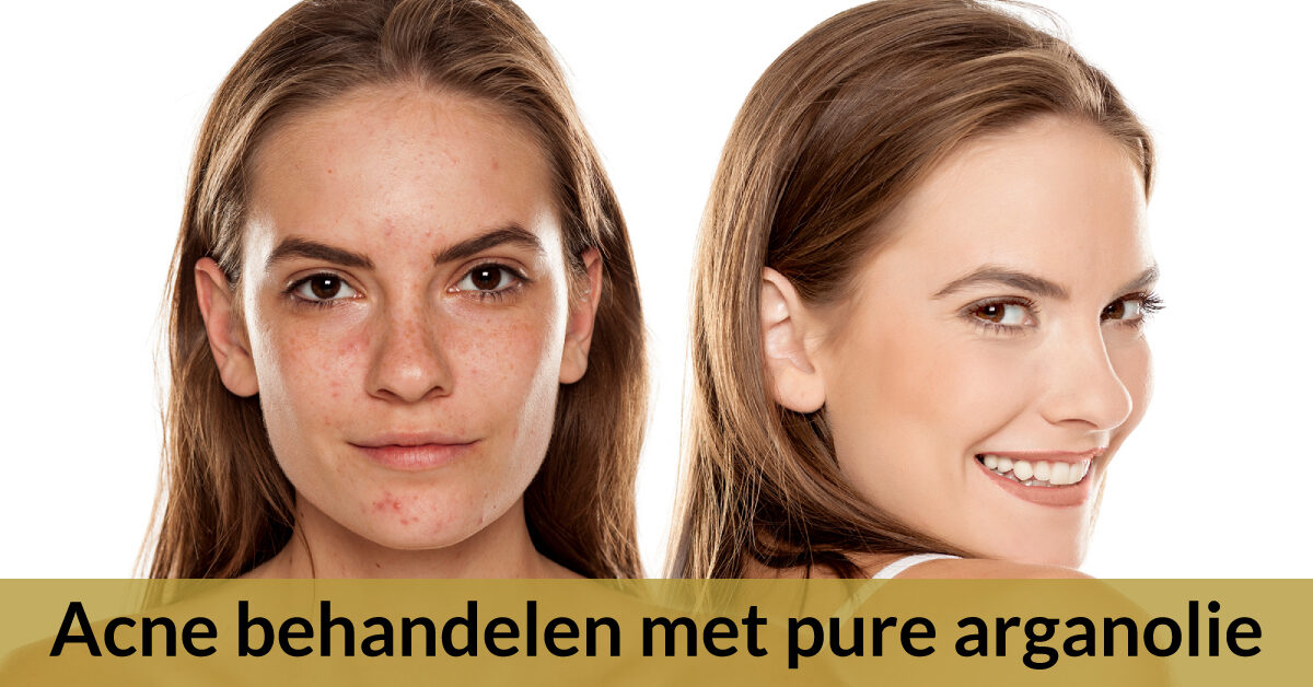 acne behandelen arganolie voor en na vrouw