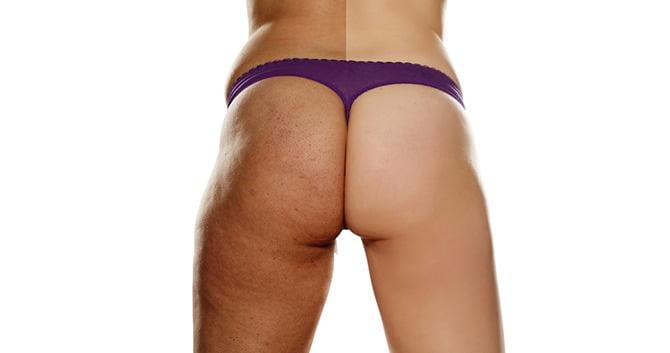 durf-je-benen-deze-zomer-te-ontbloten-pak-striemen-en-cellulitis-aan