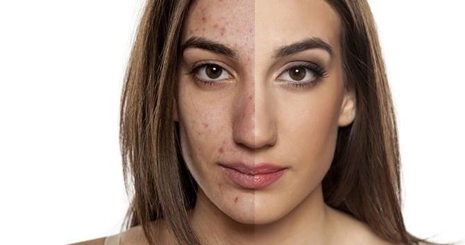 huidveranderingen-tijdens-de-zwangerschap1