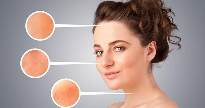 kan-het-roken-van-sigaretten-acne-veroorzaken-en-de-huid-beschadigen1