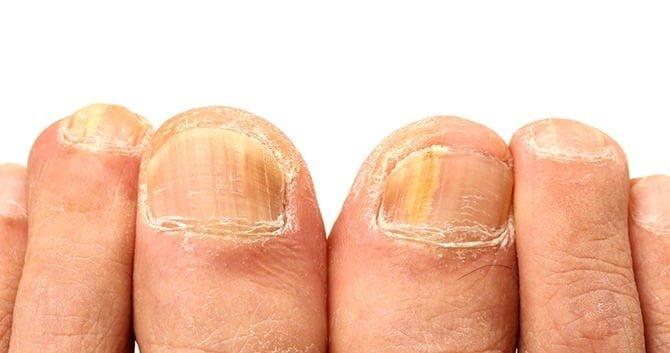 ken-jij-de-meest-voorkomende-nagelinfecties1