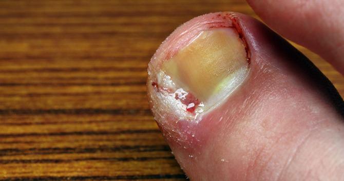 ken-jij-de-meest-voorkomende-nagelinfecties2