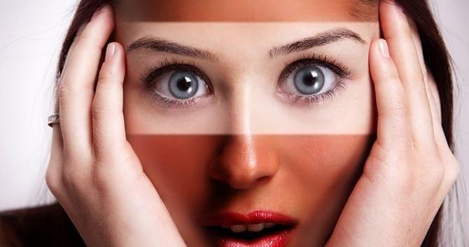 leer-hier-hoe-je-een-zonverbrande-huid-kunt-behandelen2