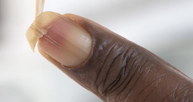 horizontale witte strepen op nagels