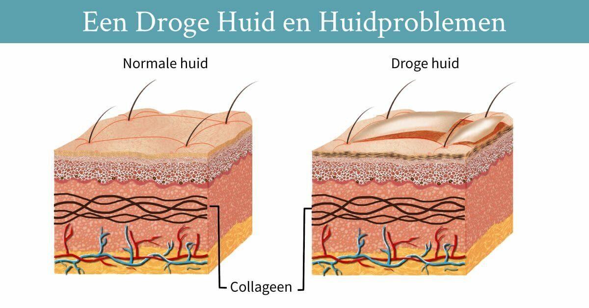 verschil normale huid droge huid huidlagen