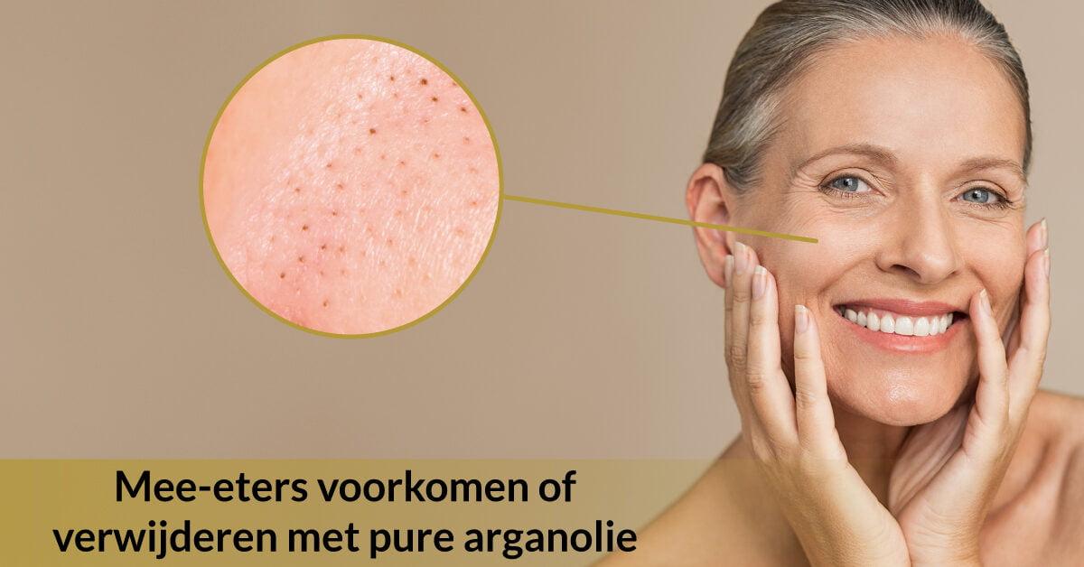 vrouw mee-eters uitvergroot behandelen verwijderen mee eters pure arganolie