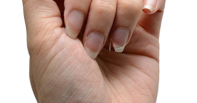 waarschuwing-negeer-broze-nagels-niet2